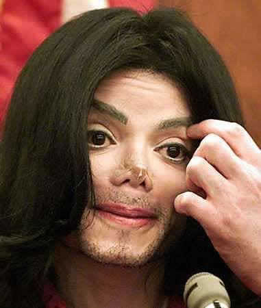 MICHAEL JACKSON! -HE BLEACHED,WHICH LED TO HIS SKIN DISEASE-THEN AT DEATH HE WAS DIAGNOSED WITH SKIN CANCER WHICH WOULD HAVE KILLED HIM IF OVERDOSE HAD NOT!-DON'T BLEACH AND DIE!-STOP BLEACHING!-DAPADA!-RESTORE YOUR BEAUTIFUL BLACK SKIN GOD GAVE YOU!